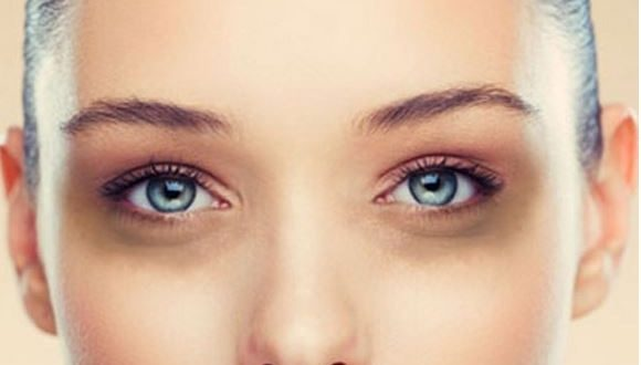 eye dark circle treatment